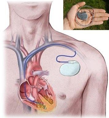kalp pilleri sorunları